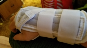 pic 2_sprained wrist